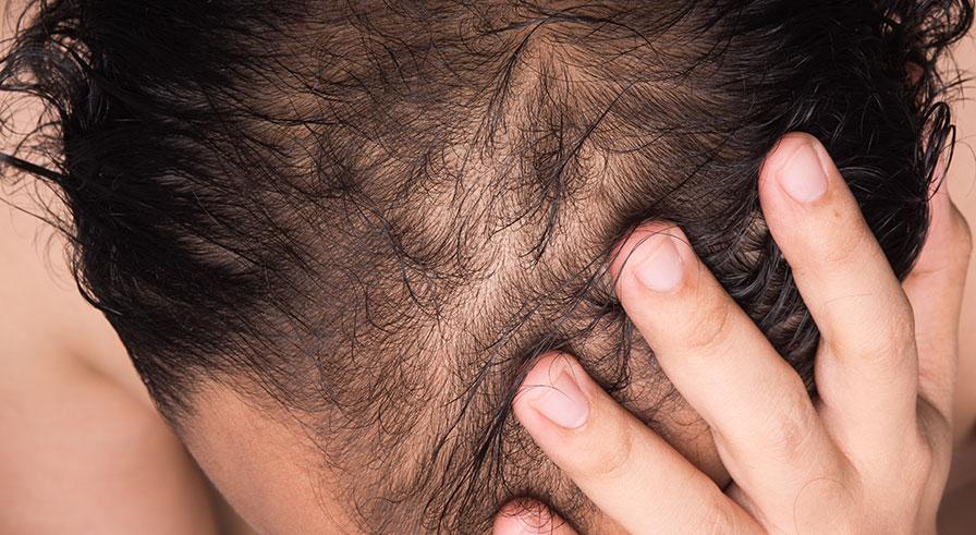 För- och nackdelar med att göra en hårtransplantation
